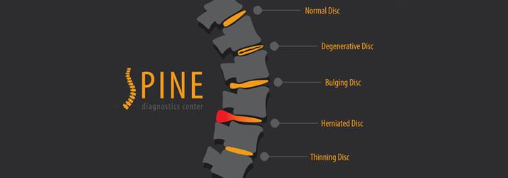 Chiropractic Vienna VA Herniated Disc